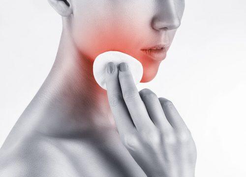 Cystic acne control