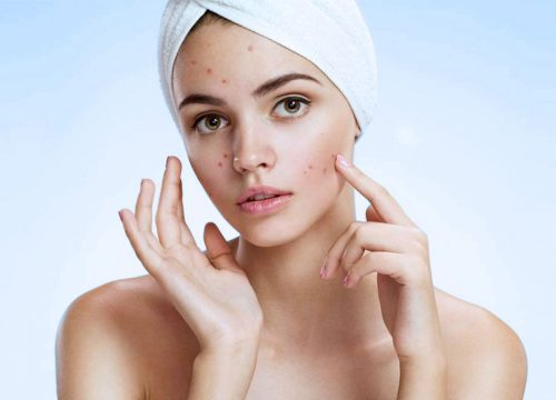 Acne Control in NW Calgary